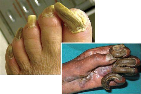 Berbagai penyakit dan tips merawat kuku kaki - Reps