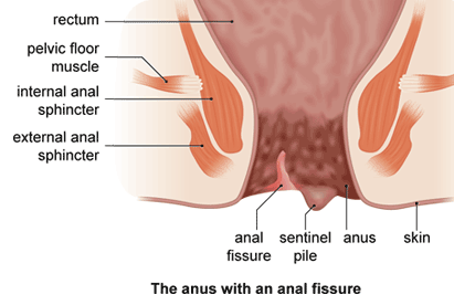 Fissure from anal sex