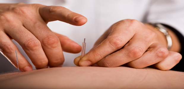 Acupuncture-For-Weight-Loss-620x300