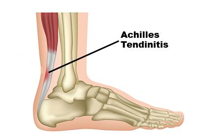 achilles-tendonitis1