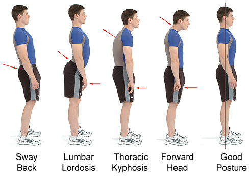 lordosis-treatment-kyphosis-treatment